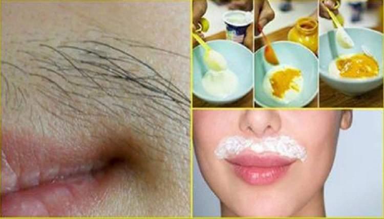 f2e903d9d 5 – Receita com ovo, açúcar e amido de milho para eliminar pelos do rosto