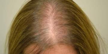 Conheça as principais causas para queda de cabelo