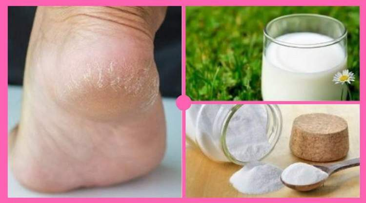 Receita caseira com bicarbonato de sódio para deixar os pés macios e bonitos