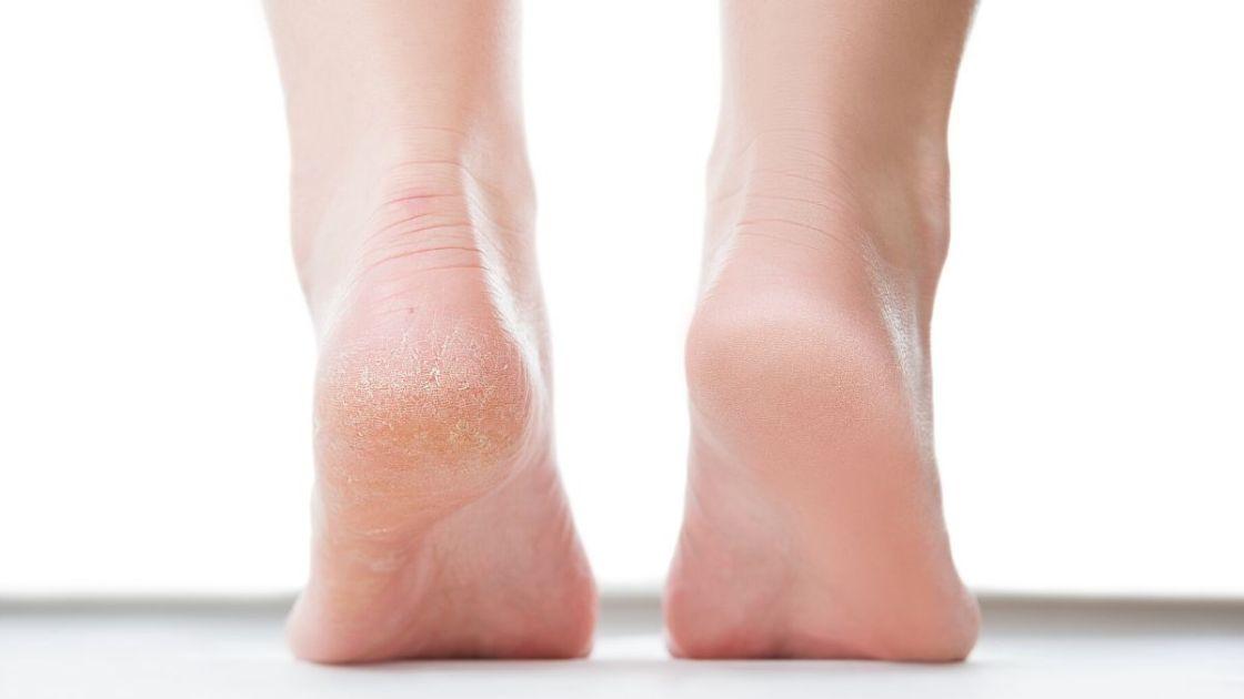 Como usar vinagre para pés ressecados