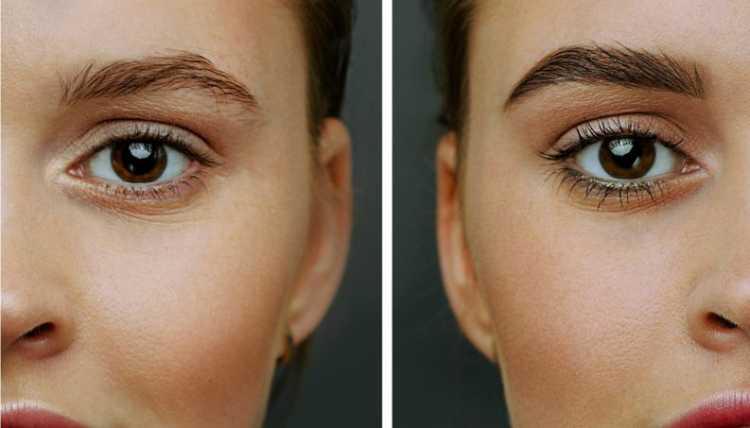 Sobrancelhas: antes e depois