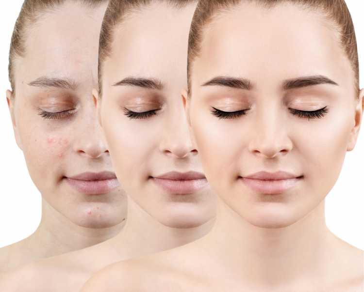 base é um dos truques para a maquiagem perfeita de Carnaval