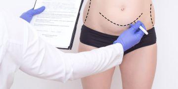 Como é feita a abdominoplastia?