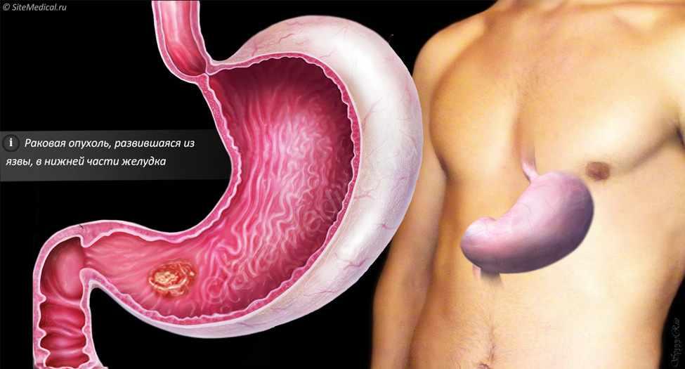 Как сделать анализ желудка