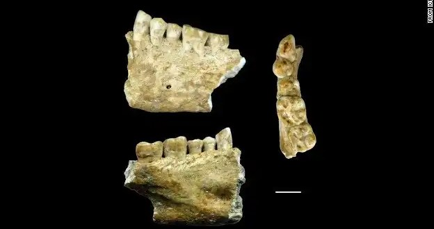 Hallan evidencia de la existencia de dentistas en la prehistoria
