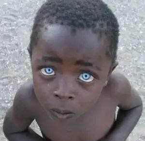 Foto: el misterio del niño con ojos color Zafiro