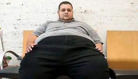 Relación entre obesidad y accidentes de tránsito