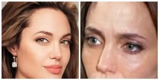 Angelina Jolie necesita urgente un trasplante de hígado