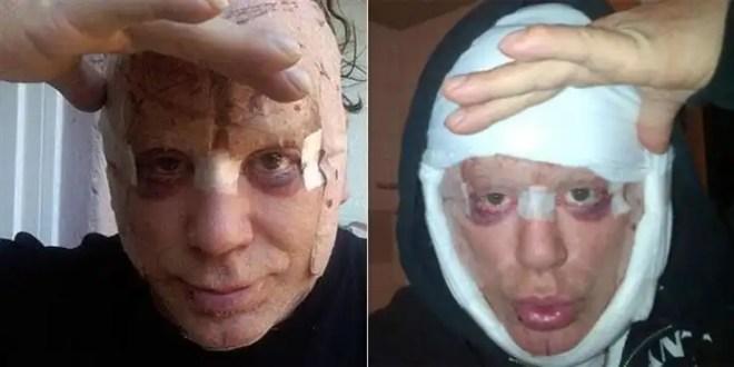 Mickey Rourke se opera la cara nuevamente - Fotos