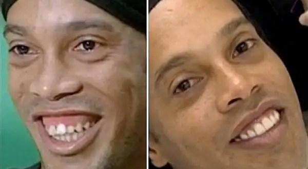 Mira la nueva sonrisa de 50.000 euros de Ronaldinho - Fotos