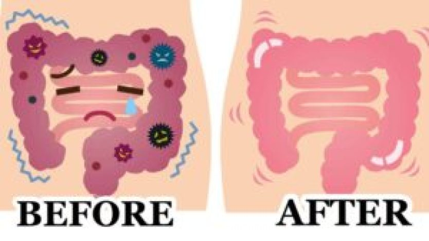 colon cleanse 300x169 1