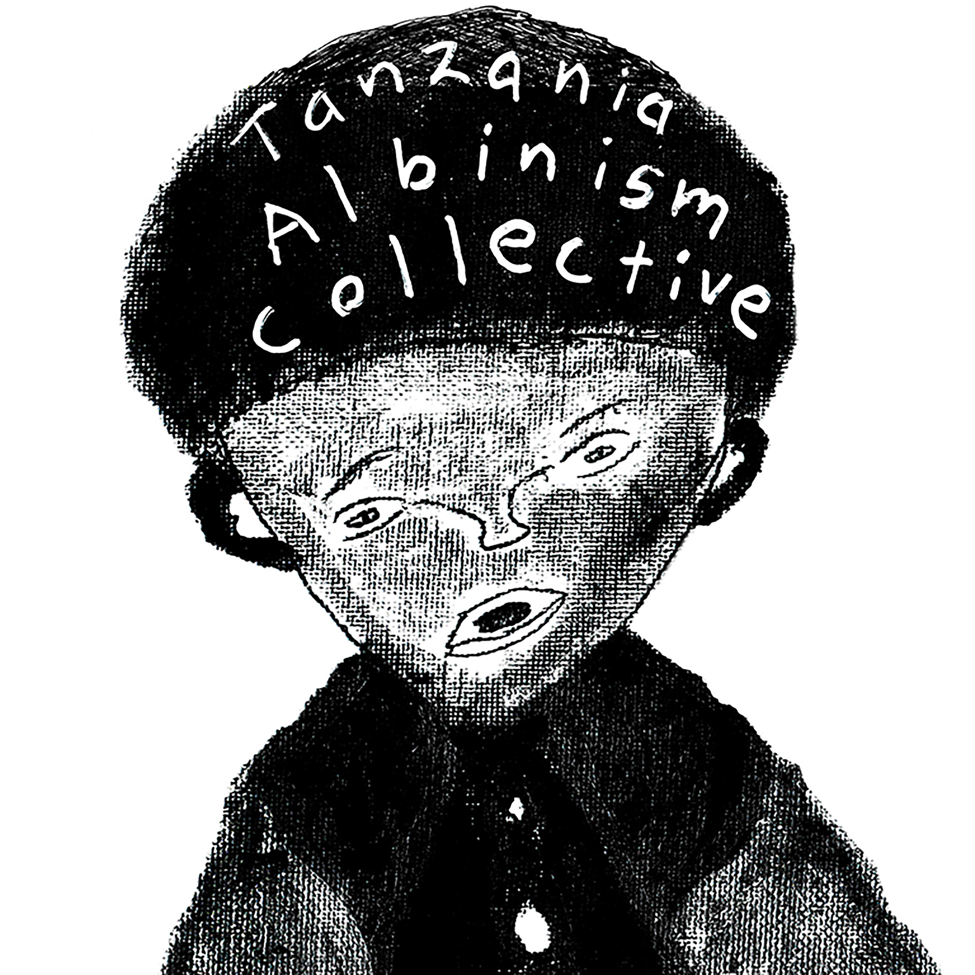 Tanzania Albinism Collective – Our Skin May Be Different, But Our Blood Is The Same