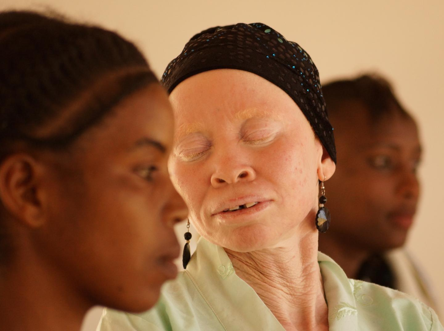 Newsweek in depth feature of Tantazia Albinism Collective