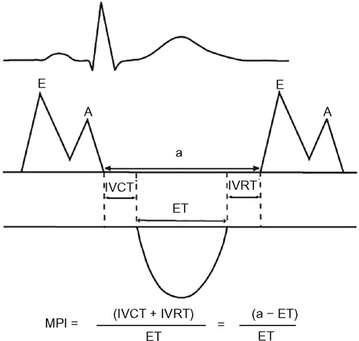 hight resolution of et ejection time ivct isovolumic contraction time ivct isovolumic contraction time ivrt isovolumic relaxation time