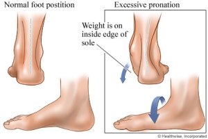 Foot Pronation and the Figure Skater