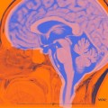 "Why believe the ""ten-percent myth"" Human Brain usage?"