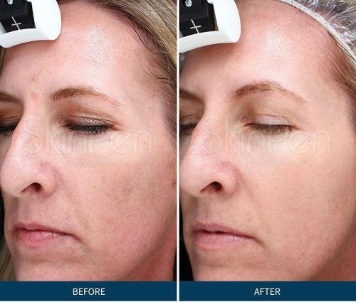 Microneedling Before & After Pictures SkinPen Skin2O Spa www.skin2ospa.com