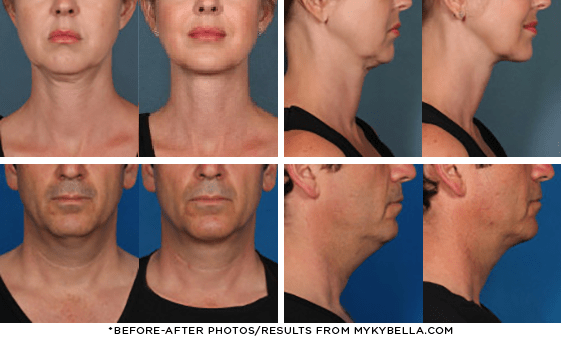 Before and after photos - Results from Kybella