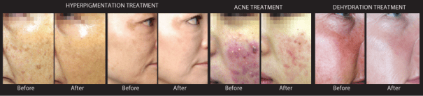 SilkPeel 4 pics before after