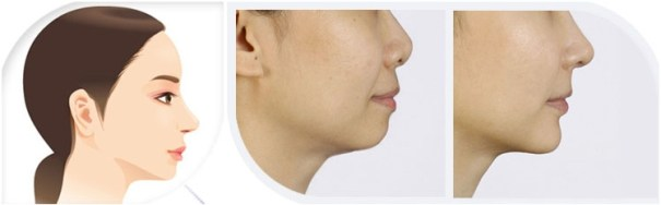 Non-surgical chin augmentation and jawline shaping