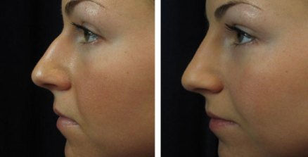 Nose reshaping with non-surgical rhinoplasty