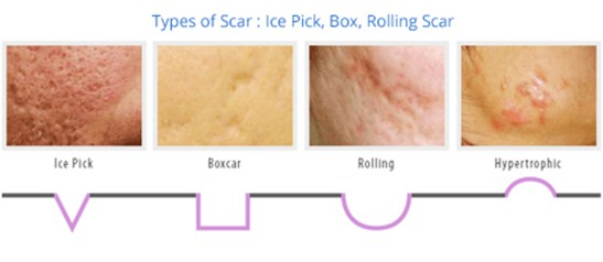 Types of scars: Ice Pick, Box, Rolling Scar