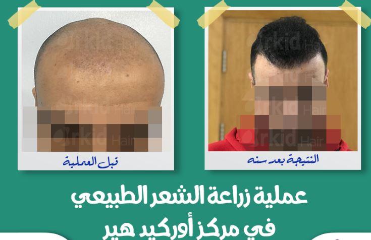 مركز اوركيد هير لزراعة الشعر