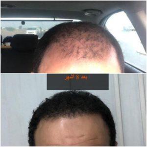 صور زراعة الشعر قبل وبعد في مصر
