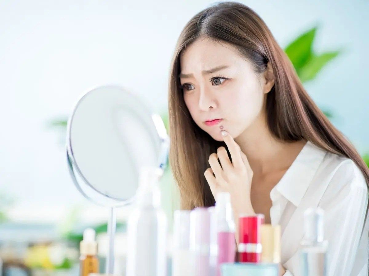 Acne Around the Mouth Causes and Treatments