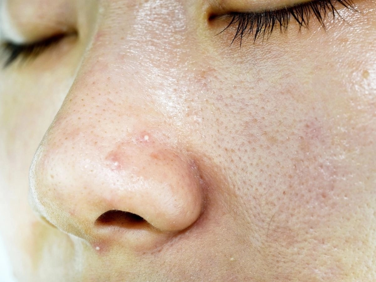 12 Most Common Misconceptions About Oily Skin Care