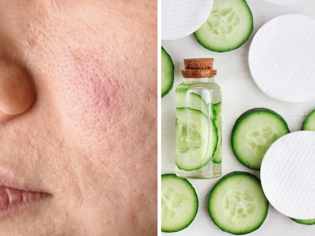 Top 10 Best Face Toners to Tighten Pores