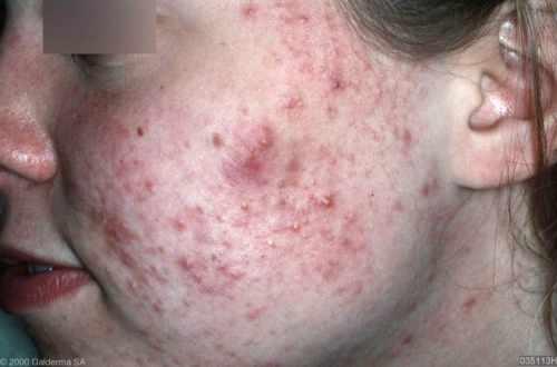 Matige acne