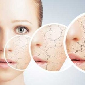 Droge huid tips