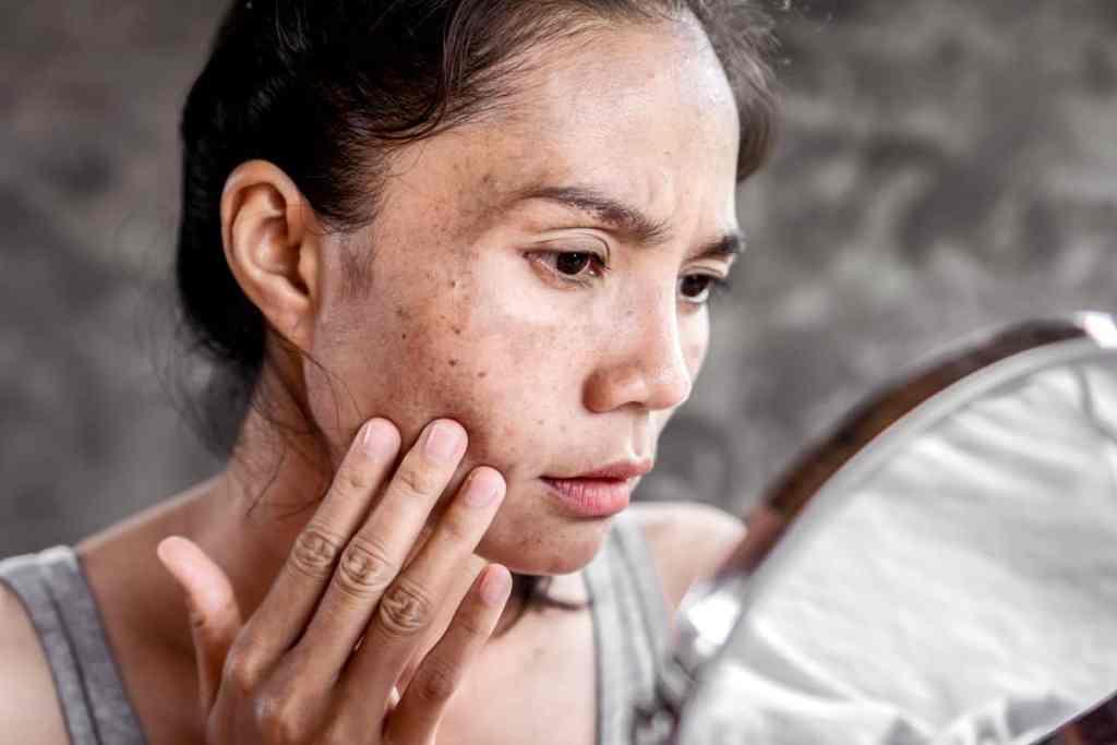 Melasma, pigmentstoornis van de huid, te veel pigment, zwangerschapsmasker