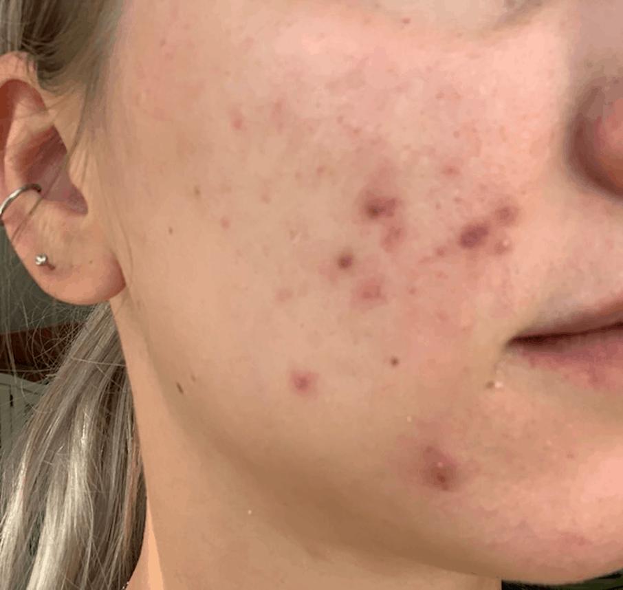 Acne verminderd direct na de chemische peeling