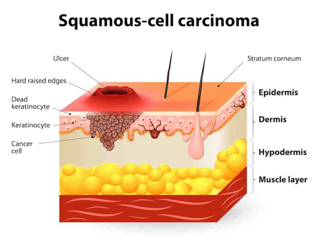 squamous cell carcinoma, anatomie huid, huidlagen, plaveiselcelcarcinoom, huidkanker, anatomie huidkanker