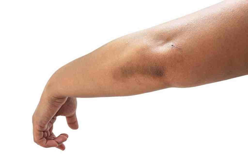 Acanthosis Nigricans, hyperpigmentatie, verdikte huid, verhoorning van de huid, keratinocyten vermenigvuldigen, te snelle deling van pigmentcellen. retinol, tretinoïne, vitamine D, afvallen, insuline resistentie.