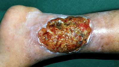 Image result for venous ulcer