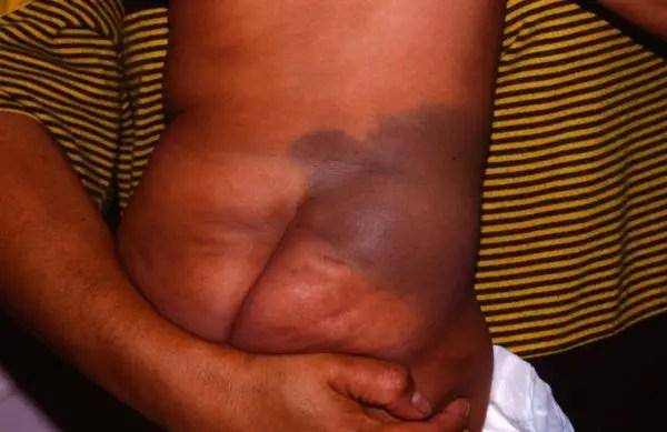 Mongolian Spot Birthmark On White Baby Do Mongolian