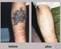 Tca Tattoo Removal