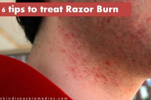 tips to get rid of razor burn