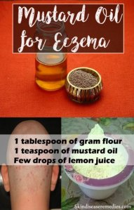Mustard Oil for Eczema – 3 Awesome Home Recipes