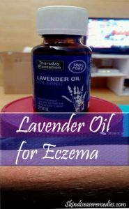 Use Lavender Oil for Eczema- The Only Essential Oil You'll Need
