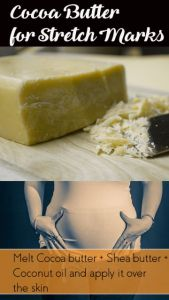 Cocoa Butter for Stretch Marks – 5 DIY Recipes (No.5 is Excellent)
