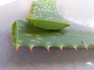 aloe vera for scalp psoriasis
