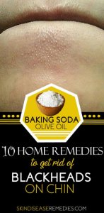 How to Get Rid of Blackheads on Chin – 10 DIY Remedies Included