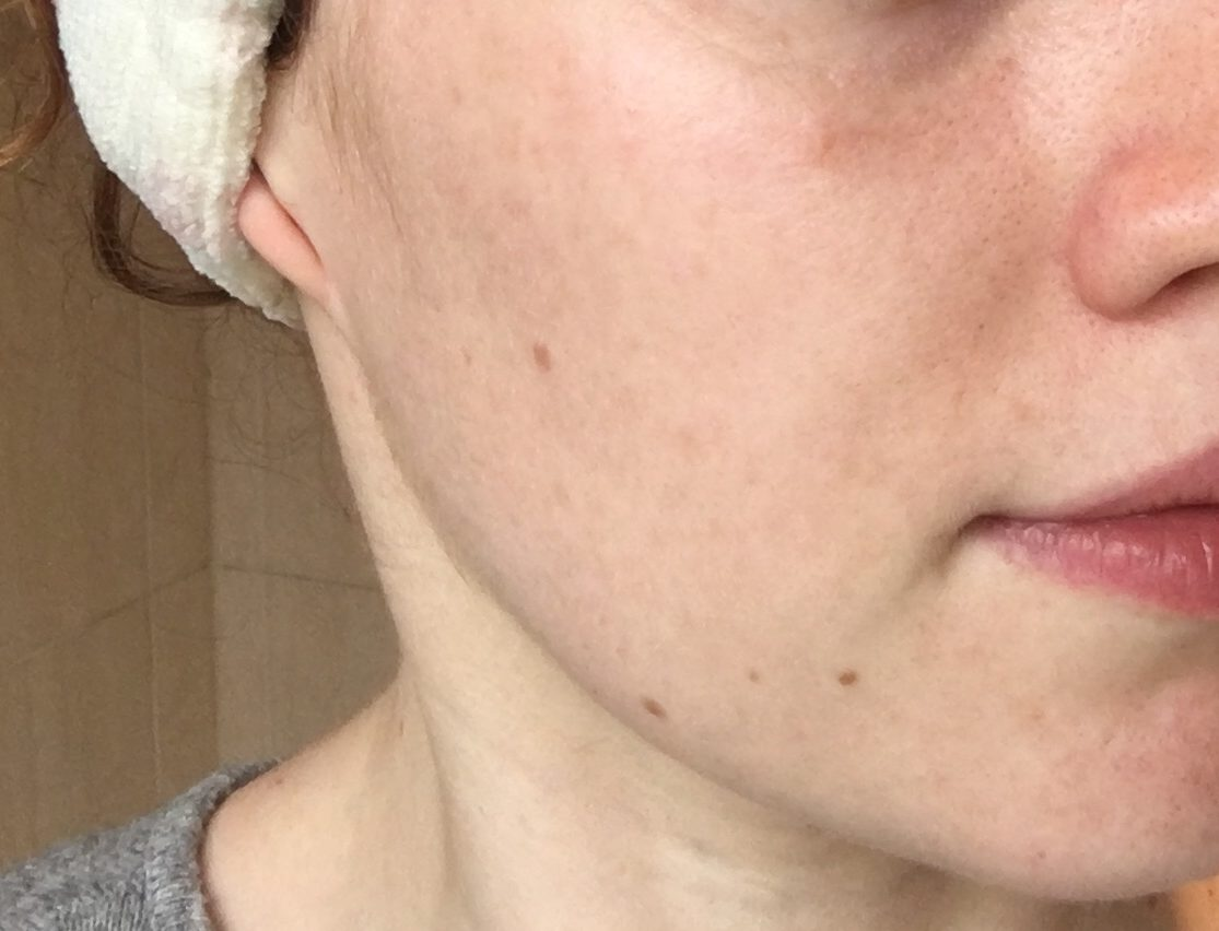 Mife nude tips for at home facial mole removal woman