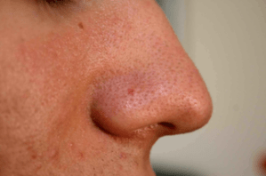 Blackheads - type of acne