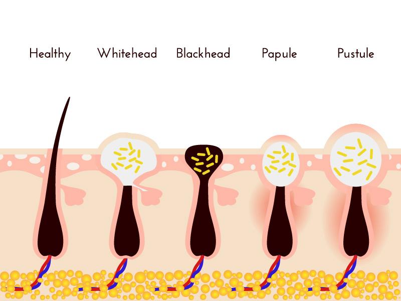 Types of body acne