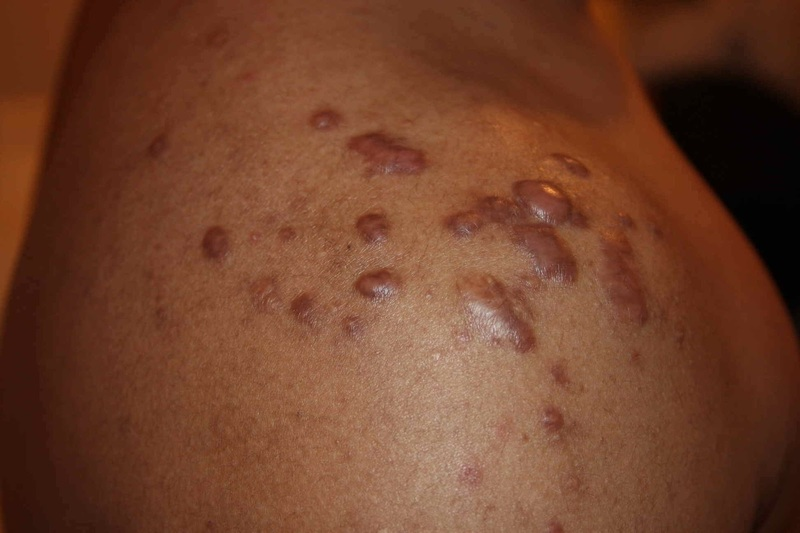 Keloid shoulder acne scars